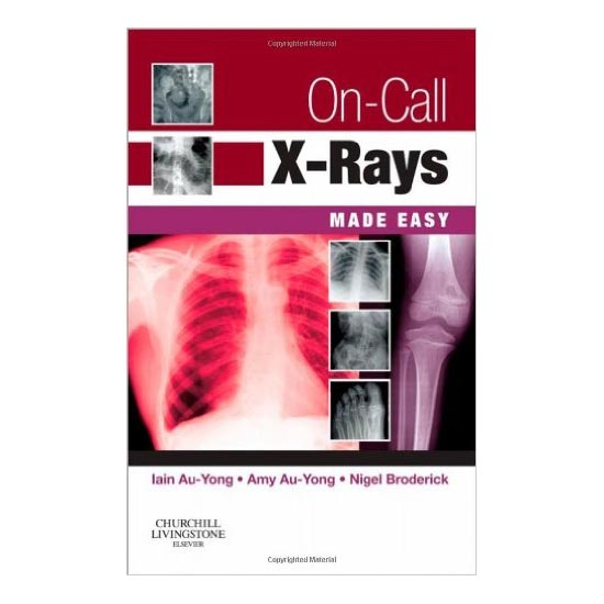 On Call X Rays Made Easy A020539 large 1