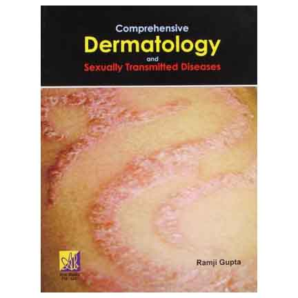 Comprehensive Dermatology And Sexually Transmitted Diseases A540023 large 1