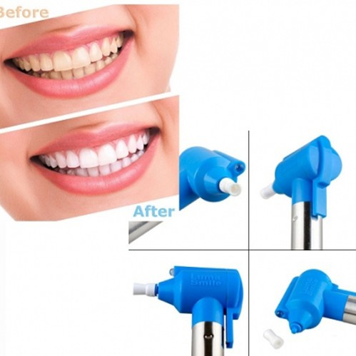 Luma Smile Teeth Polish Whitening Kit large 1