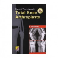 Current Techniques In Total Knee Arthroplasty 2E A540033