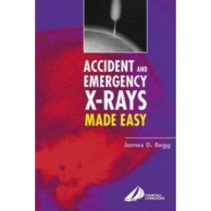 Accident and Emergency X Ray Made Easy A020445