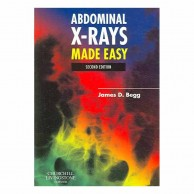 Abdominal X Rays Made Easy 2E A020011