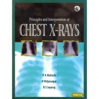 Principles and Interpretation of Chest Xrays with CD A250018