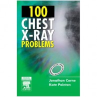 100 Chest X Ray Problems A020450